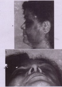 liG. 2.3-7. A anu B, Suft tissue contusions with no underlying facial fractures caused by blunt injuries.