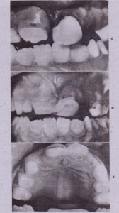 FIG. 23-17-cont'd C,Position of tooth after digital reduction. 0 and E,Appearance of tooth after acid-e~~h composite stabilization to adjacent teeth