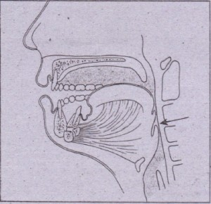 FIG. 24-1. Posterior displacement of tonque and occlusion of upper airway resulting from bilateral mandible fractures.