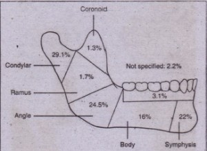 FIG. 24-11 Anatomic distribution of mandibular fractures. (From Olson RA et 0/: Fractures of the mandible: a reviev« of 580 cases, J Oral Maxillofac Surg 40:23, 1982.)
