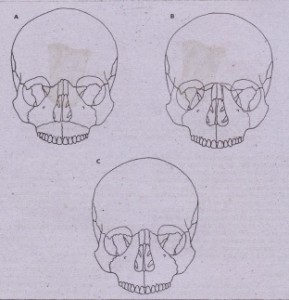 "r.: Ca , 2·""· 1~, Le Fort midfacial fractures. A, Le Fort I fracture separating 'inferior portion of maxilla in horizontal fashion, extending from piriform aperture of nose to pterygoid maxillary suture area. 8, Le Fort II fracture involving separation of maxttla and nasal complex from cranial base, zygomatic orbital rim area, and pterygoid maxillary suture area. C, Le Fort III fracture (i.e., craniofacial separation) is complete separation of midface at level of nasoorbital-Ethmoid complex and zygomaticofrontal suture area. Fracture also extends through orbits bilaterally .:"
