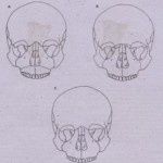 TREATMENT Of  FACIAL FRACTURES
