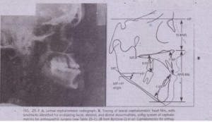 FIG. 25-4 A, Lateralcephalometric radiograph. B, Tracmq of lateral cephalometric head film, with landmarksidentifiedfor evaluating facial,skeletal,and dental abnormalities,using system of cephalometriesfor orthognathic surgery (see Table25-1). (8 from Burstone C) et 01: Cephalometries for orthognathic surgery, ) Oral Surg 36:269, 1978.)