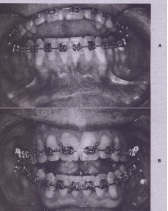 FIG. 25-5 A, Presurgical appearance of gingival tissue labial to lower anterior teeth. Inadequate area of attachment and keratinizatlon is visualized. B, Siqniflcant improvement in attachment and keratinization of 'labial gingival tissue after gingival grafting