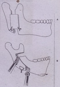 FIG. 25-16 Mandibular advancement techniques. A, Mandibular advancement using vertical osteotomy and iliac crest bone grafts in osteotomy defect. 8, Modified C osteotomy with sagittal splitting of inferior border of mandible combined with iliac crest bone grafts
