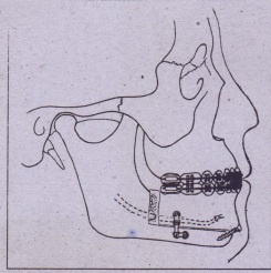 FIG. 25-18 Total subapical-osteotomy. Dentoalveolar segment of mandible is moved anteriorly, allowing correction of class 1/ malocclusion without increasing chin prominence.