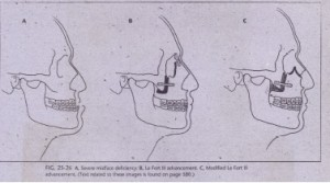FIG. 25-26 A