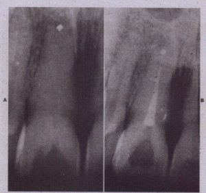 FIG. 17-11 This case is poorly done and done for the wrong reasons. A, inadequate root end resection and root end filling does not seal apex. B, Root canal treatment is readily accornplished, with good chance of succ <