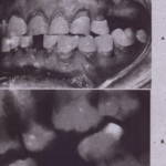 DENTAL MANAGEMENT OF PATIENTS UNDERGOING RADIOTHERAPY TO HEAD AND NECk
