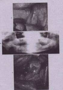 """FIG. 18-3 Osteoradionecruso vI tile lei, Ill,'; """" ..ble, IL"""" i'"""",.l:;I~II~d """" i,,:1 ~("""",r)l: of tumoricidal radiotherapy for squamous cell corclnorna. The dentition W,l~ lemovt:d at the time of the cancer resection. This patient was prep-red fur treatment of the osteor,ldion<:crosis with pre- and postoperative hyperbaric oxygen treatments. A, Exposed devrtal hone: alan'] alveolar ridge of left mandible. B, Panoramic radiograph she-vine diffuse irregularity without good coruccuon of alveolar crest. C, Surgical exposure of tile area shows dcvital bone rnarqins and cl celltr,,1 oau.r devoid 01 bone"""