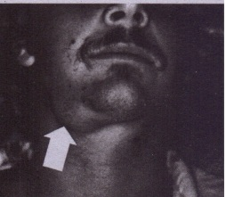 FIG. 20-14 Clinical photograph demonstrates a right submandibular swelling (arrow) secondary to' obstruction from a submandibular sialolith.