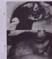 FIG. 19-14-cont'd G, Palatal flap has been 'rotated laterally and sutured in place. Osseous defect is well covered. Small area of exposed bone near palatal midline will heai by secondary intention. H, Well-closed oroantral communication 4 weeks after rotation of palatal flap. Vestibular depth is maintained with this procedure. Metallic-foil closure of oroantral communications
