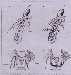 """. ,~, 19· i:; Metallic-foil closure of oroantral communications. A, Diagrammatic illustration of. oroantral fistula in right maxillary alveolar process in region of missing first molar tooth, which is to be closed with subperiosteal placement of metallic-foil """"patch."""" 8, Botl') facial and palatal mucoperiosteal"""" flaps are developed. When elevated, these provide ample exposure of underlying atveolar process and fistulous tract. Fistulous tract is excised. Osseous margins must be exposed 360 degrees ,around bony defect to allow placement of metallic-foil patch beneath, mucoperiosteal flaps. Flap is supported on all sides by underlying bone. C, Metallic-foil patch has been adapted to cover osseous defect and positioned between alveolar process and overlying buccal and palatal mucoperiosteal flaps. Foil should be supported on all its margins by sound underlying bone. Mucoperiosteal flaps have been repositioned , and sutured over foil. D, Cross-sectional diagram of metallic-foil closure technique. Both buccal and palatal mucoperiosteal flaps are elevated to expose osseous defect and large area of underlying alveolar borie around oroantral communication."""