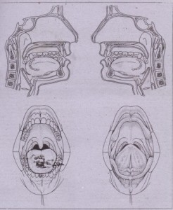 HG. 21·2 Illustrations of eril cavity and perioral areas, which are useful for indicating size and location .