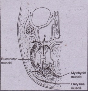 FIG. 16- 1 As infection erodes through bone, it can express itself in a variety of places, depending on thickness of overlying 'bone and relationship of muscle attachments to site of perforation. This illustration notes six' possible locations: vestibular abscess (1), buccal space (2), palatal abscess 0), sublingual space (4), submandibular space (5), and maxillary sinus (6). (Fr.om Cummings CW et at, editors: Otolarynqoloqy: head and neck surgery, vol 3, St Louis, 1998