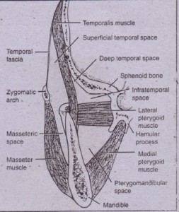 "FIG. 16-4 Spaces of ramus of mandible are bounded by m.isseter muscle, medial pterygoid muscle, temporal fascia, and skull. Temp J ral space is divided into dee~ and superficial portions .and by tenporalis muscle"" (Redrawn from Cumminqs CWet 01,editors: Otola.vngology: head and neck surgery, 1'013, St Louis, 1998, Mm/;)'_)"