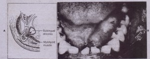 FIG i6;0 A, Sublingual space between oral mucosa and mylohyoid muscle. It is primarily involved by infection from mandibular premolars and first molar.- B, This isolated sublingual space infection. produced unilateral swellin'g of floor of mouth. (Frcrn Cummings CW et 'al, editors: Otclaryr-qoloqy: head and neck SIJ~g~r:,\','01 3, 51 Louis, 7998, Mosbv.)