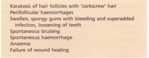 Clinical features of vitamin C deficiency.