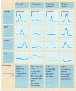 Oesophageal manometric patterns in normal and diseased states. lOS, lower oesophageal sphincter.