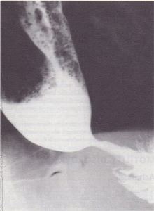 Barium swallow showing achalasia with atonic body of the oesophagus and a narrowed distal end. Note food residue in dilated oesophagus.