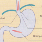 Oesophageal rupture