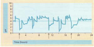 24-Hour intraluminal pH monitoring. Five reflux episodes (pH < 4) occurred, but only three gave symptoms (arrows).