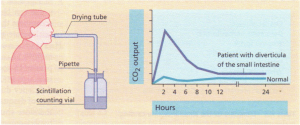 The [14Clglycocholic acid breath test. The apparatus is shown on the left. The graph shows the amount of 14C02 expired in the breath after an oral dose of [14C]glycocholic acid in a normal subject and in a patient with diverticula of the small intestine.