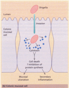 (b) Mechanisms of diarrhoea. Colonic mucosal cell. This demonstrates one of the mechanisms by which an invasive pathogen, e.g. Shigella, acts. Following penetration, the pathogens generate cytotoxins which lead to mucosal ulceration and cell death.