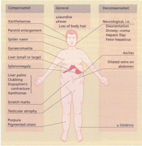 Physical signs in chronic liver disease.