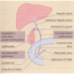 THE GALLBLADDER AND BILIARY SYSTEM