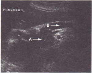Ultrasound showing carcinoma of head of pancreas