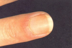 Ragged cuticle and nail-fold capillary dilatation associated with dermatomyositis.