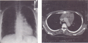 (a) A chest X-ray and (b) a (T scan of a large mediastinal mass