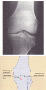 X-ray changes of osteoarthritis of the knee.