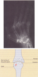X-ray changes in rheumatoid arthritis. Erosions are best seen in the small joints of the hands and feet.