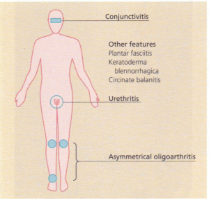 The clinical features of Reiter's syndrome.