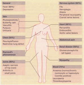 Clinical features of systemic ,......'-~ ••ernatosus.