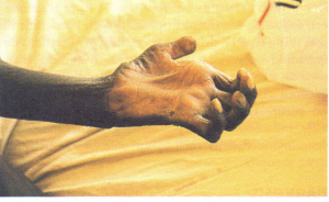 Leprosy-daw hand due to median and ulnar nerve damage.
