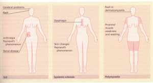 Major clinical features distinguishing various ective-tissue diseases.
