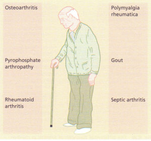 The differential diagnosis of arthritis in the elderly.
