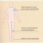 Crystal deposition diseases
