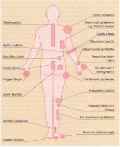Common soft-tissue rheumatic syndromes.