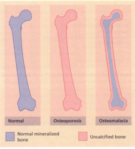 Diagrammatic representation of the effects of osteoporosis
