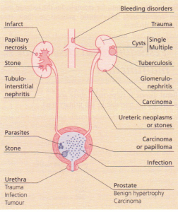Sites and causes of bleeding from the urinary tract.