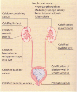 Calcification in the renal tract.