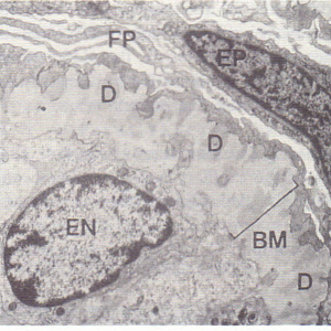 An electron micrograph showing immune complexmediated glomerulonephritis.