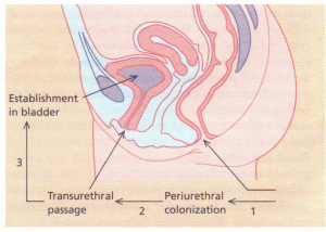 Ascending infection of the urinary tract.