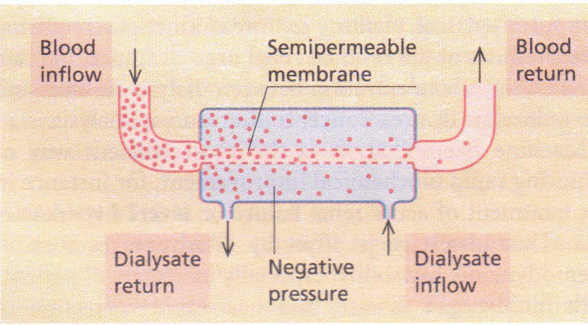 membrane permeability usuing dialysis tubing And compare that to the permeability of dialysis tubing of selectively permeable membranes using common outside the dialysis tubing/cell membrane.