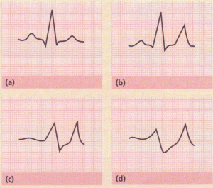 Progressive ECG changes with increasing hyperkalaemia.