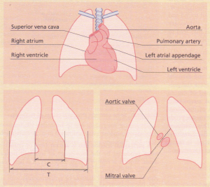Diagrams to show the heart silhouette on the chest X-ray,